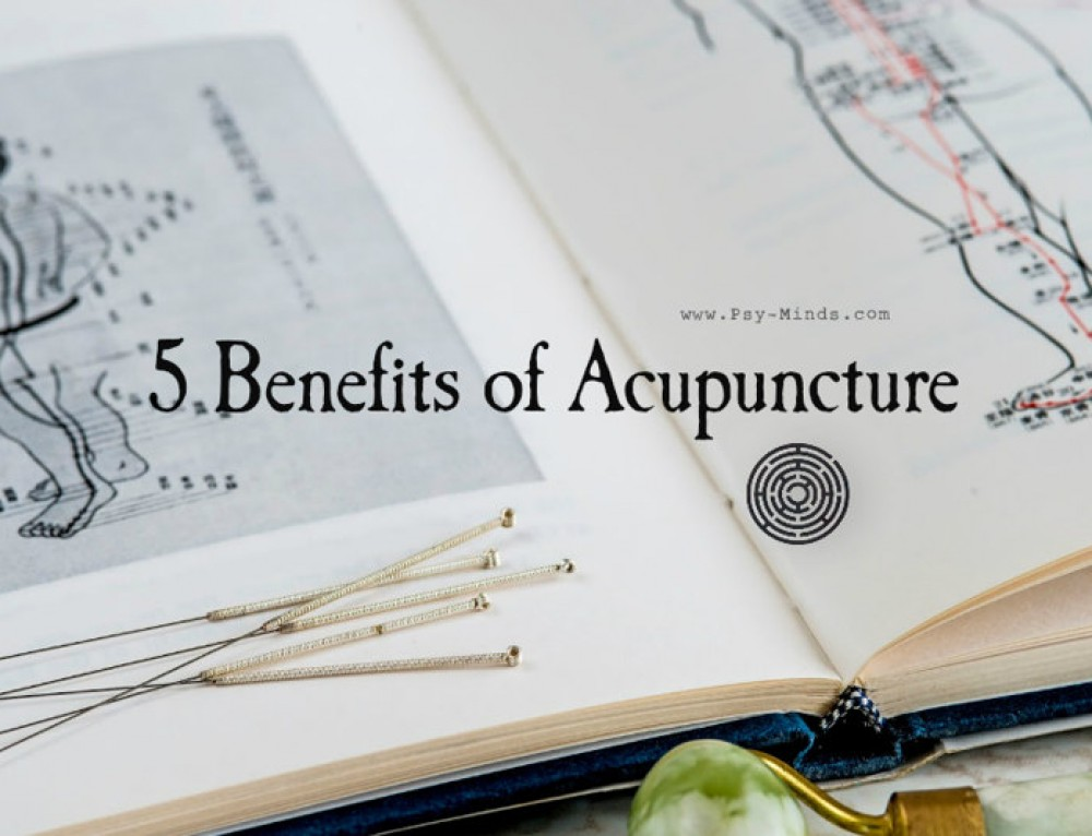 the benefits of acupuncture Here in this post, we tell you everything you need to know about various benefits  of acupuncture during pregnancy read on.