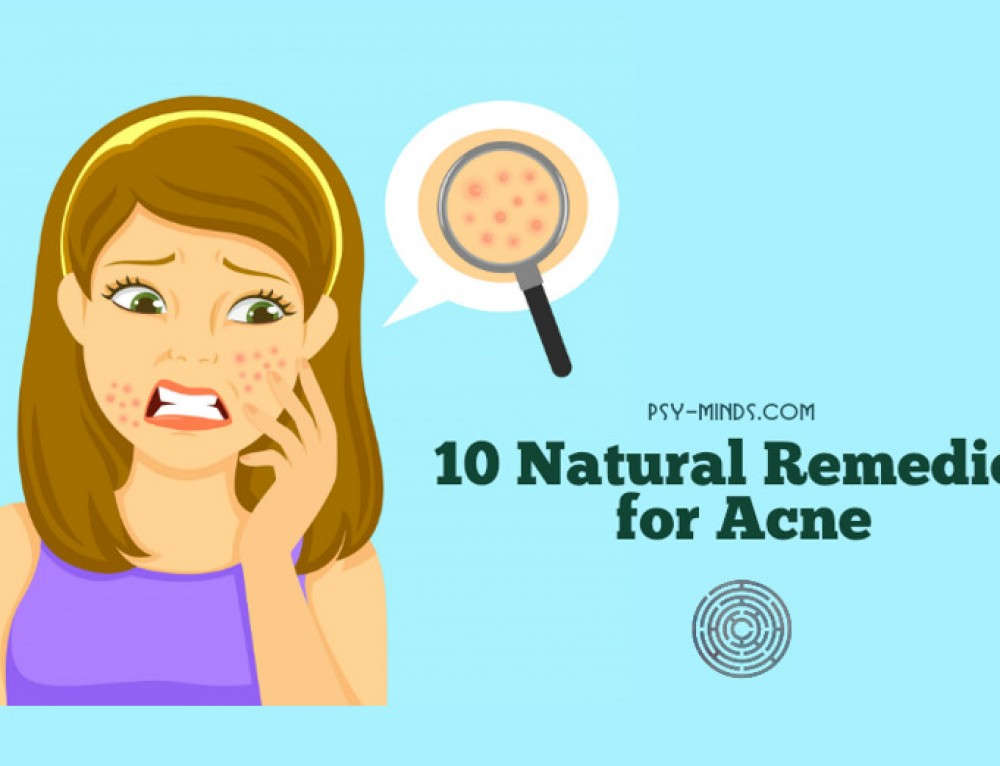 10 Natural Remedies for Acne